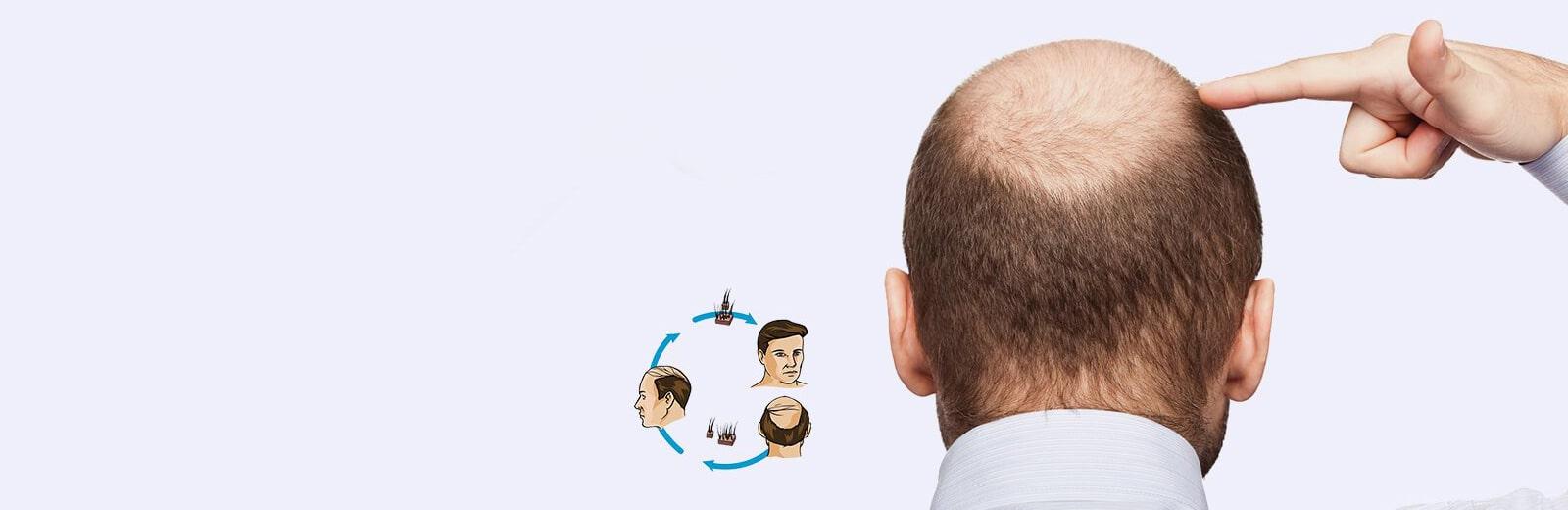 baldness solution hair transplant