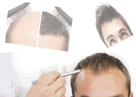 Baldness problem